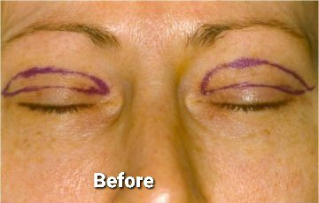 Eyelid Surgery / Blepharoplasty