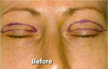 Eyelid Surgery / Blepharoplasty