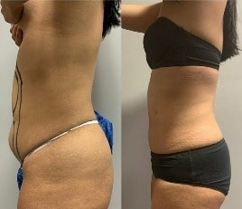 Liposuction in Lahore