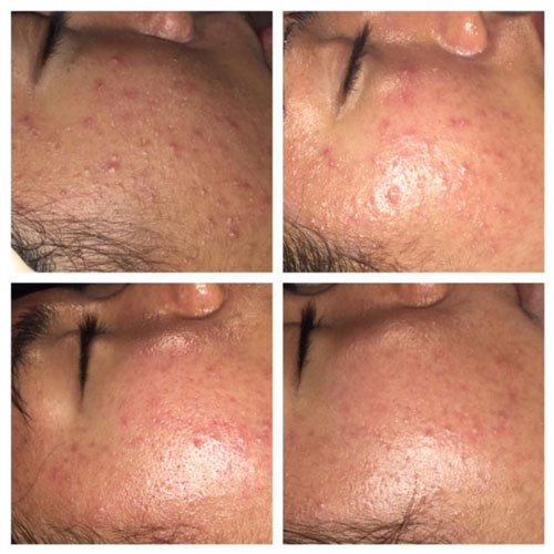 Ottawa Acne treatment