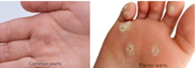warts removal treatment