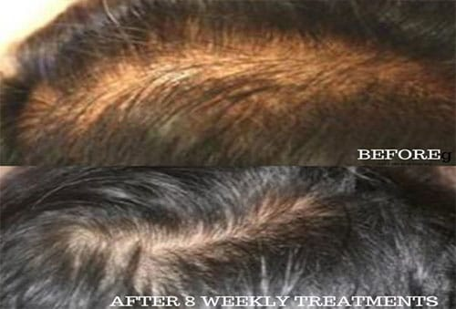 Hair Loss Repair and Vitamin Treatment