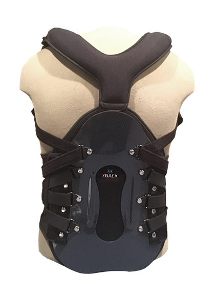 The Prolift TLSO is a unique one piece TLSO brace