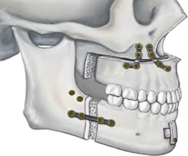 Image result for complications of MMA surgery (maxillomandibular advancement):