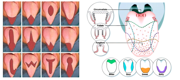 Image result for complications of Tongue reduction surgery