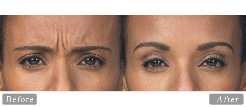 riverview_facial-botox-ava_front