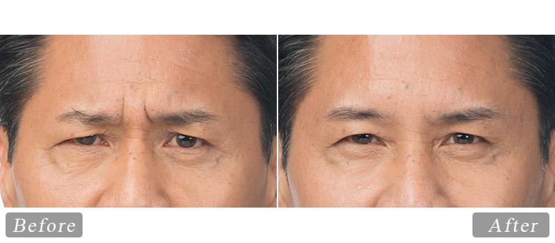 riverview_facial-botox-clint_front