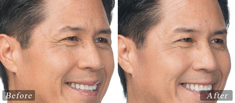 riverview_facial-botox-clint_side