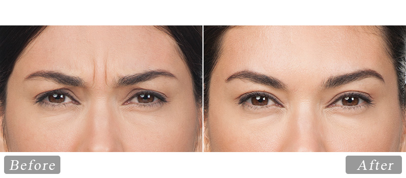 riverview_facial-botox-cynthia_front