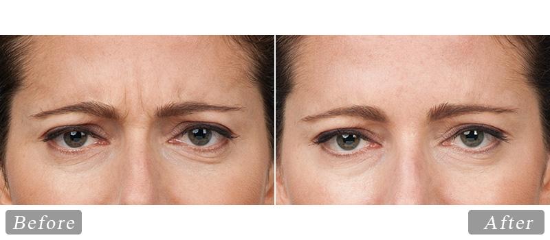 riverview_facial-botox-hollis_front
