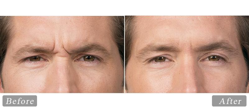 riverview_facial-botox-jim_front