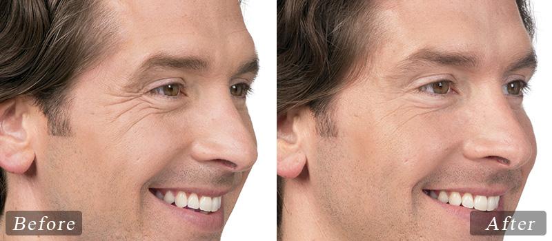 riverview_facial-botox-jim_side