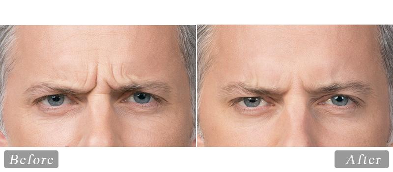 riverview_facial-botox-max_front