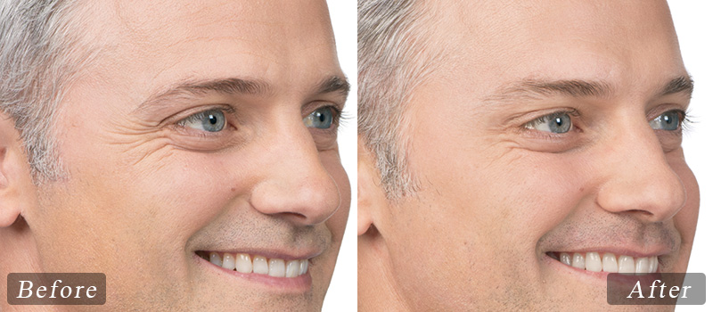 riverview_facial-botox-max_side