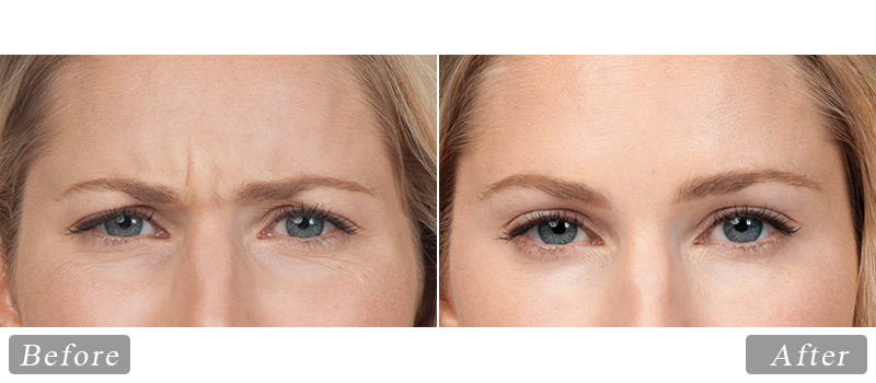 riverview_facial-botox-sandra_front