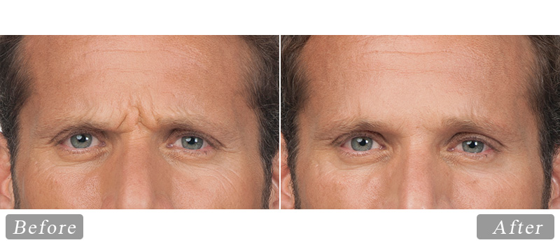 riverview_facial-botox-stephen_front