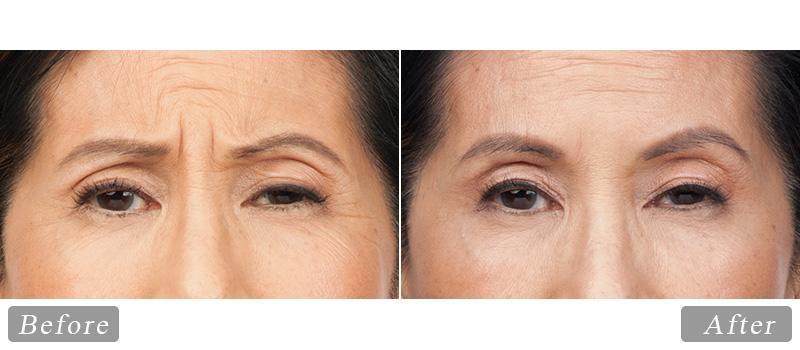riverview_facial-botox-susan_front
