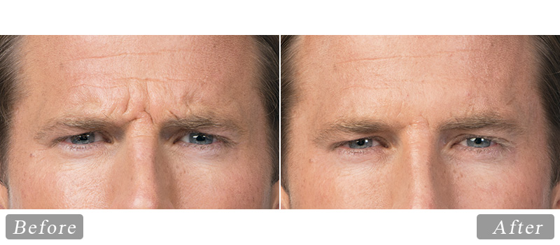 riverview_facial-botox_andy-front