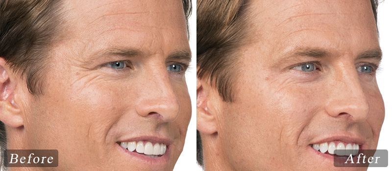 riverview_facial-botox_andy-side