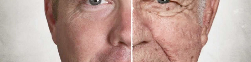 Low Testosterone Cause Signs and Symptoms of Aging