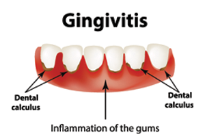 Signs of gingivitis