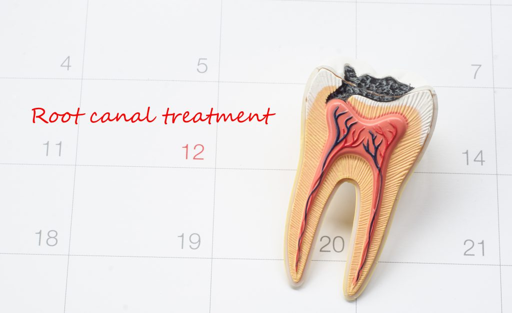 When Does a Root Canal Become Necessary?
