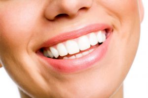 Women who had cosmetic dentistry services for a beautiful smile