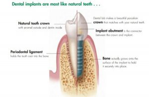 Infographics showing the benefits of dental implants