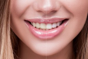 Women's smile showing before and after laser teeth whitening