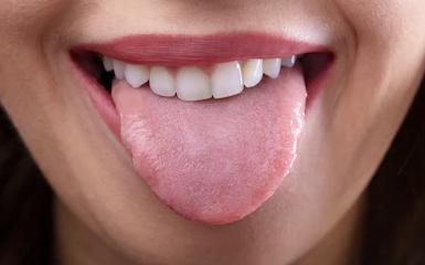 Proper Tongue Hygiene