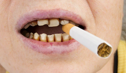 Smoking's Effect on your Oral Health