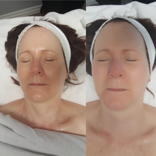 Before and After of Yonka Essential White Facial treatment