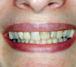 Veneers Before - Peoria Healthy Smiles