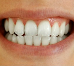 Whitening After - Peoria Healthy Smiles