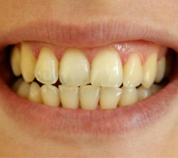 Whitening Before - Peoria Healthy Smiles