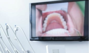 Intraoral Camera - Peoria Healthy Smiles
