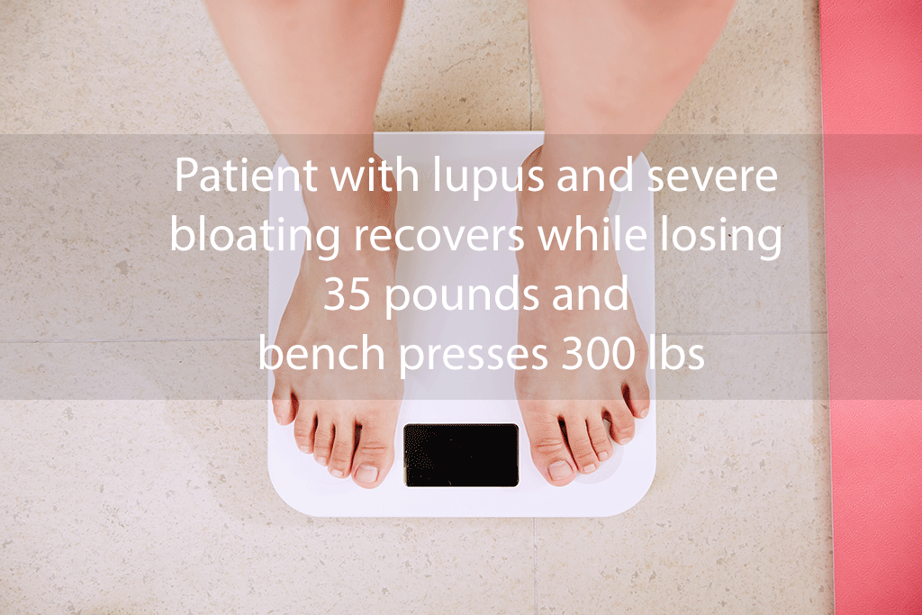 Patient with lupus and severe bloating recovers while losing 35 pounds and bench presses 300 lbs