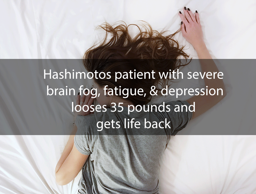 Hashimotos patient with severe brain fog, fatigue, & depression looses 35 pounds and gets life back