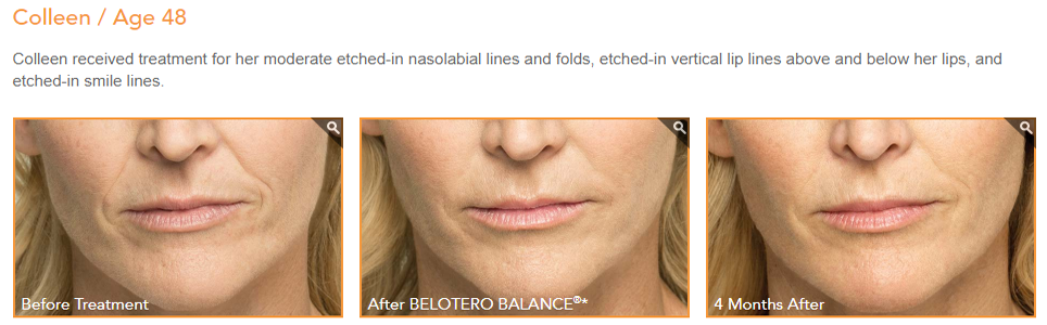 belotero dermal filler