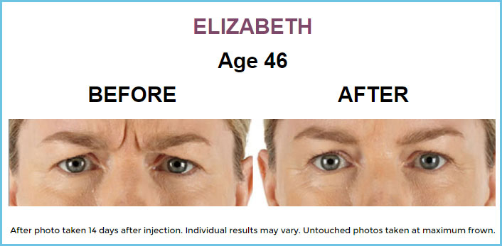 Xeomin Before & After