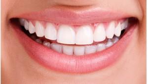 Dental_Bonding1