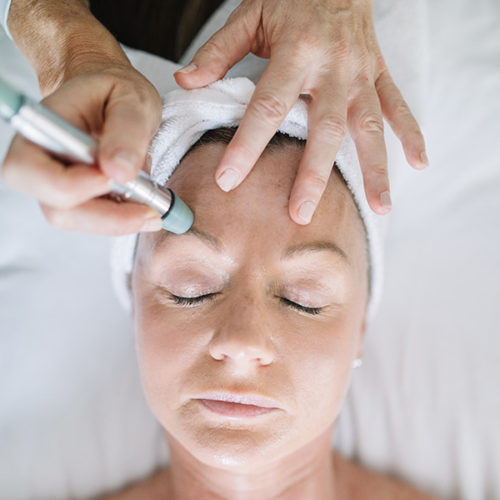 Microdermabrasion, Beauty Bungalow