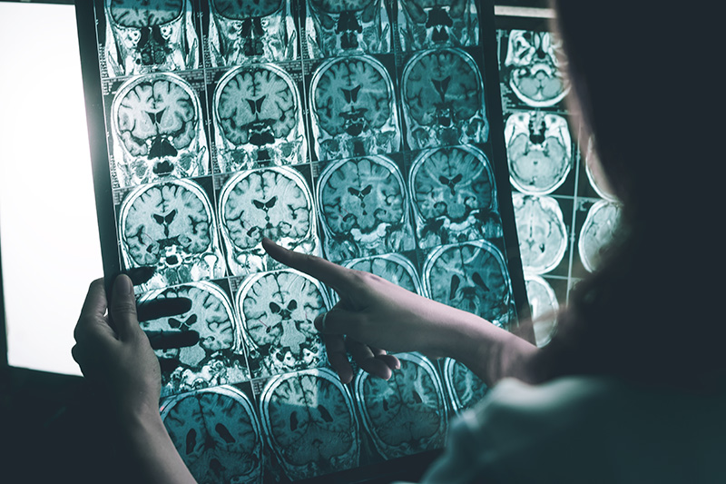 Biotechs aiming to cure Alzheimer's