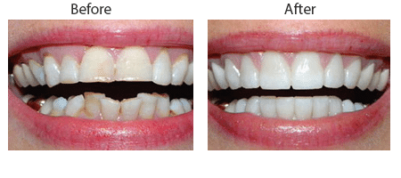 Dental Contouring Before and After Pictures in Atlanta, GA