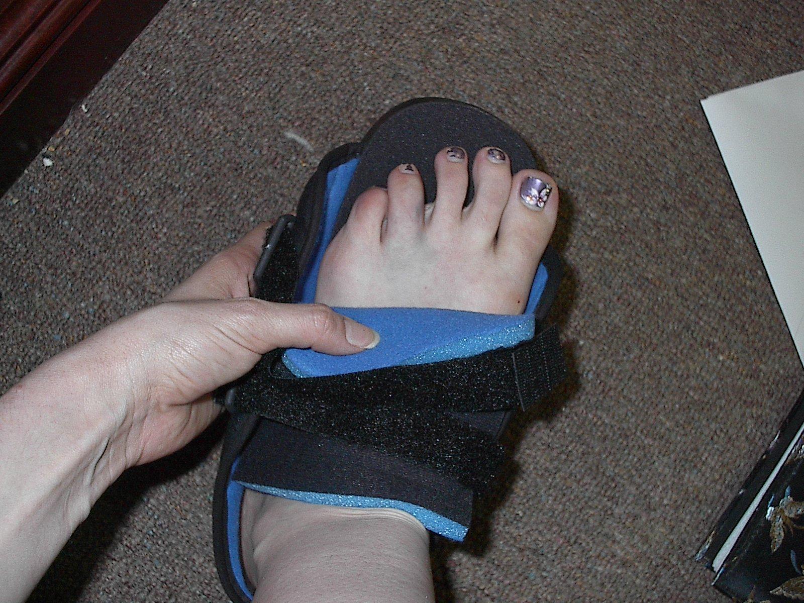 Broken Toe in Soft Cast with Pedicure