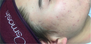 acne-1-after