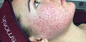 acne-2-before