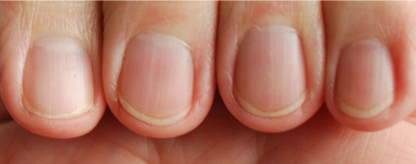 finger and toenail testing
