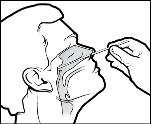 A patient is given a nasopharyngeal swab test by a healthcare worker.