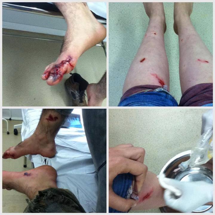 Jovens ficam feridos por bomba de efeito moral em Maricá.
